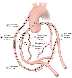Crossing options for patients with right coronary artery chronic total occlusions.